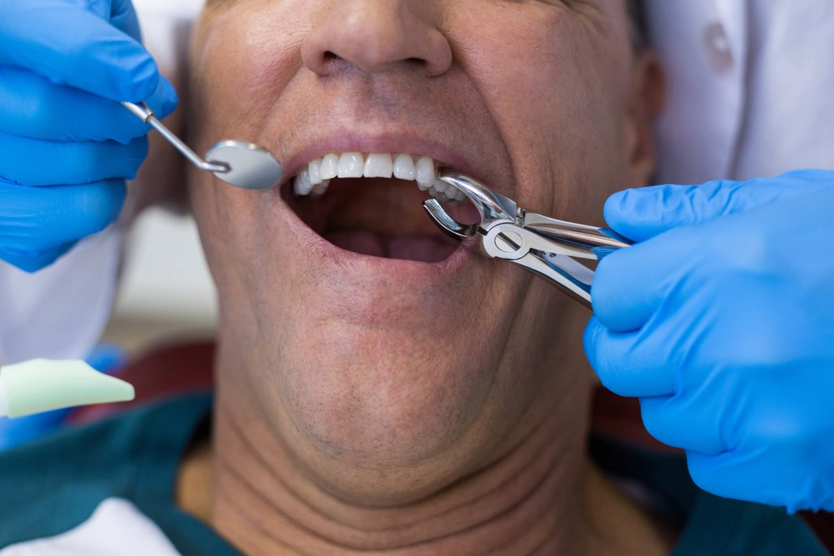 Dentist using surgical pliers to remove a decaying tooth