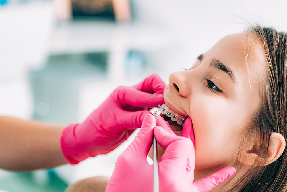 Dentl braces